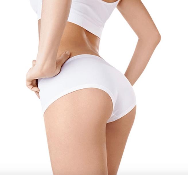 Cấy mỡ hóp mông- Làm đầy hiệu quả thẩm mỹ dài lâu