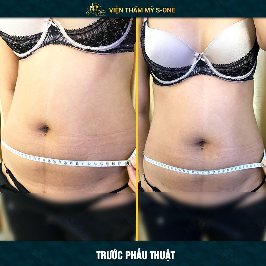 hút mỡ bụng giảm cân