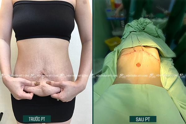 Hậu quả của hút mỡ bụng