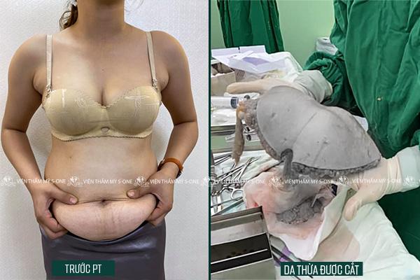 cách phẫu thuật hút mỡ bụng