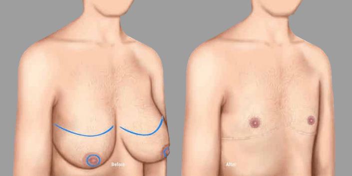 phẫu thuật cắt bỏ ngực chuyển giới