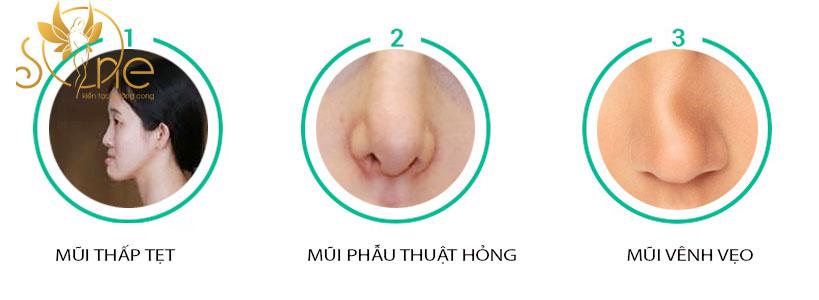 Nâng mũi S line bọc sụn tai