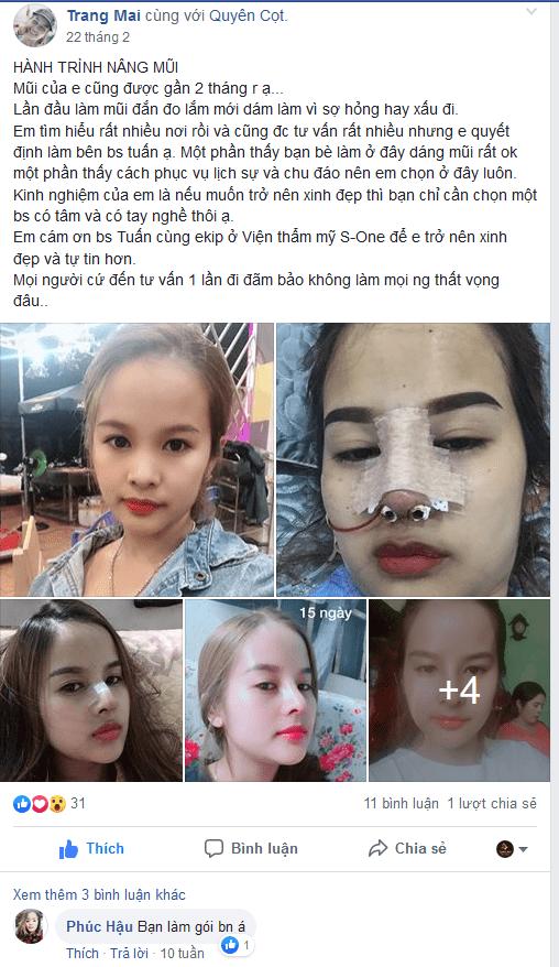 NÂNG MŨI HÀN QUỐC
