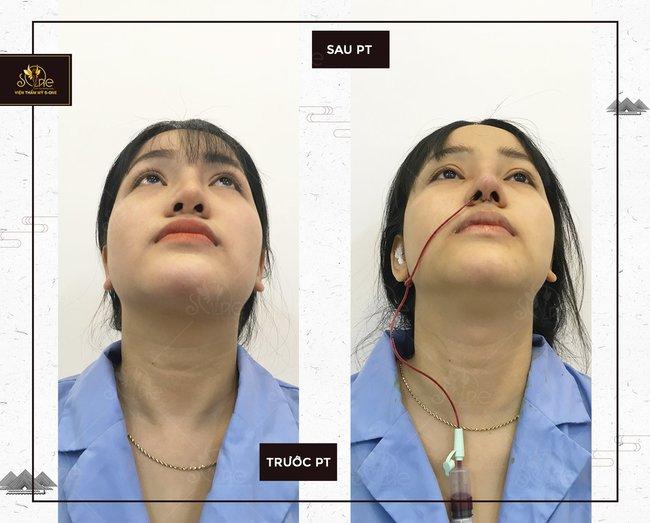 Nâng mũi cấu trúc