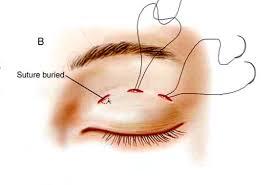 cắt mắt 2 mí Plasma