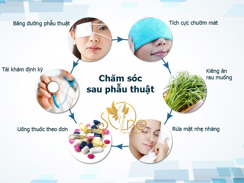 nhấn mí Thái Lan