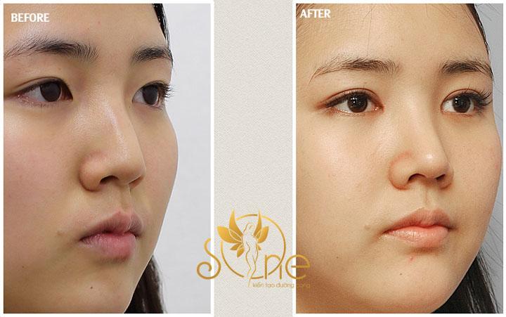hình ảnh trước và sau khi cắt mí mắt