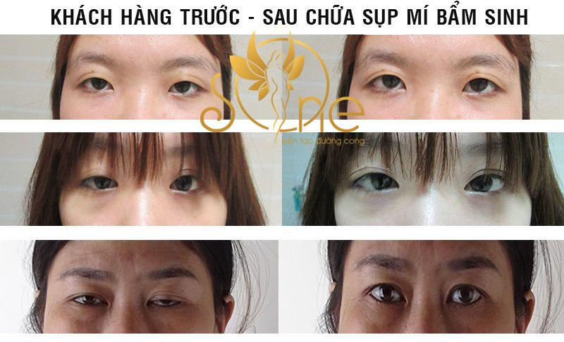 chữa sụp mí mắt