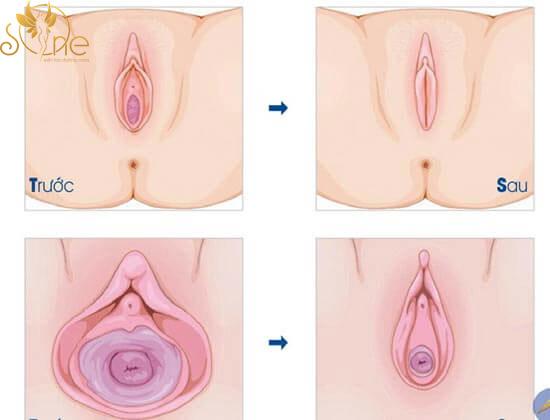 Thu hẹp ống âm đạo