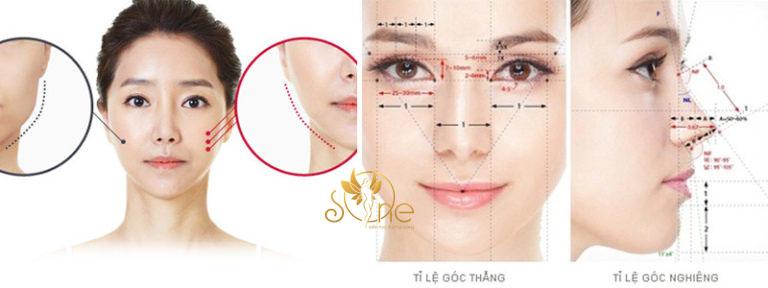 Gọt hàm V Line