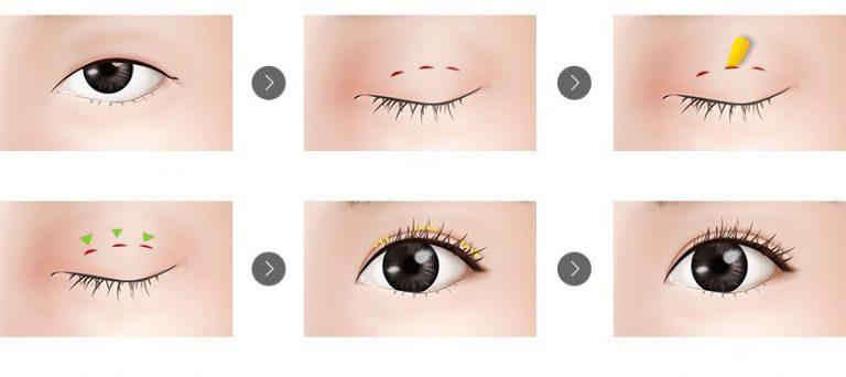 Quy trình cắt mắt 2 mí Plasma