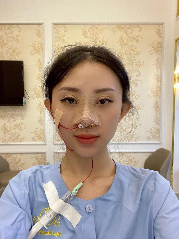 Nâng mũi tái cấu trúc
