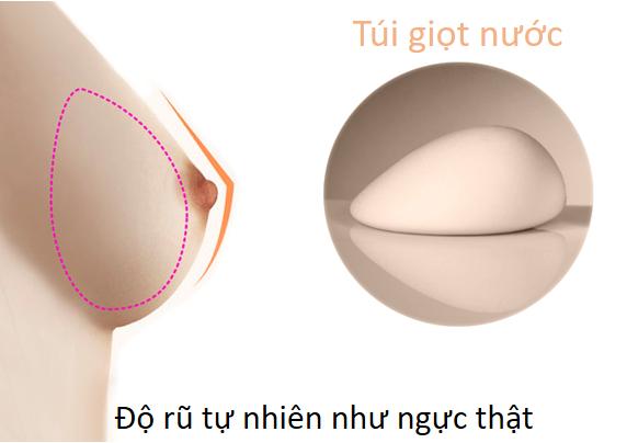 """Nâng ngực nội soi túi giọt nước - """"thước đo"""" của sự tự nhiên"""