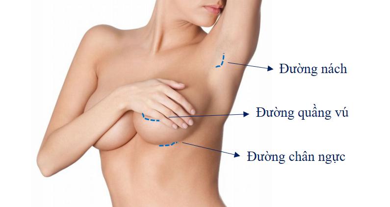 kỹ thuật nâng ngực nội soi