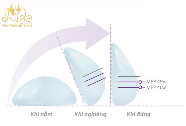 nâng ngực nano chip ergonomix
