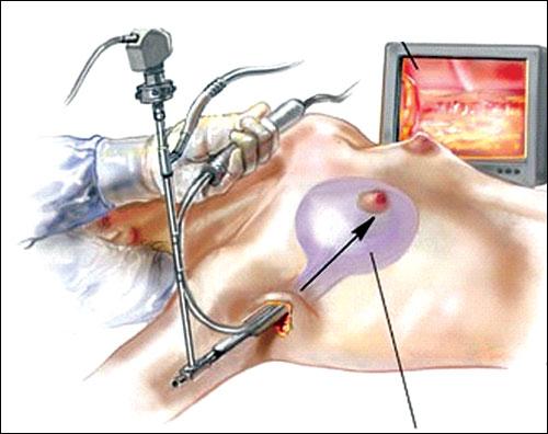 video phẫu thuật nâng ngực nội soi