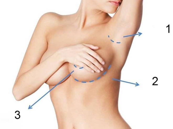 phẫu thuật nâng ngực ở đâu an toàn